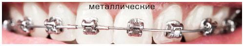 metallicheskie