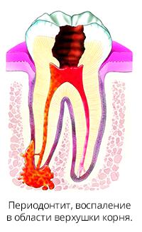 http://stomatix.ru/wp-content/uploads/2019/02/periodontit-2.jpg