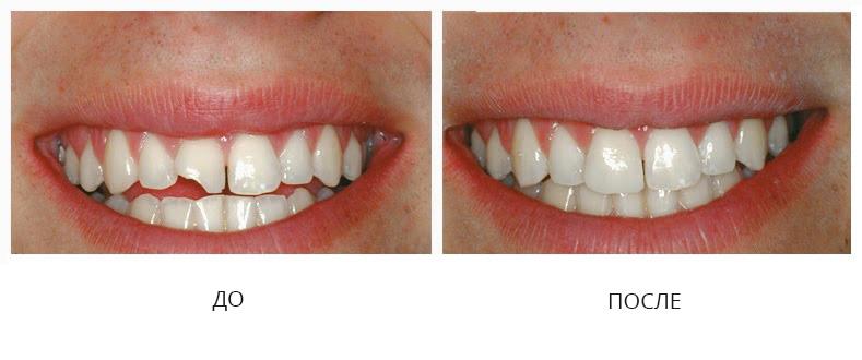 Реставрация зубов до/после